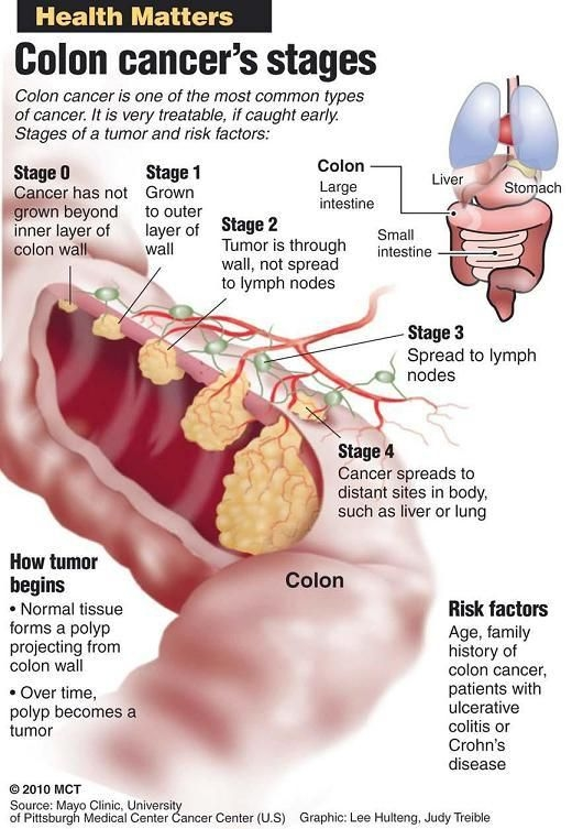 How Bad Is Stage 3 Colon Cancer Cancer News Update